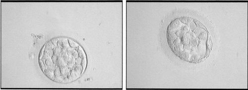 Round 2 Embryos